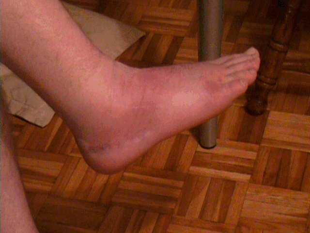 A rather bruised, swollen foot